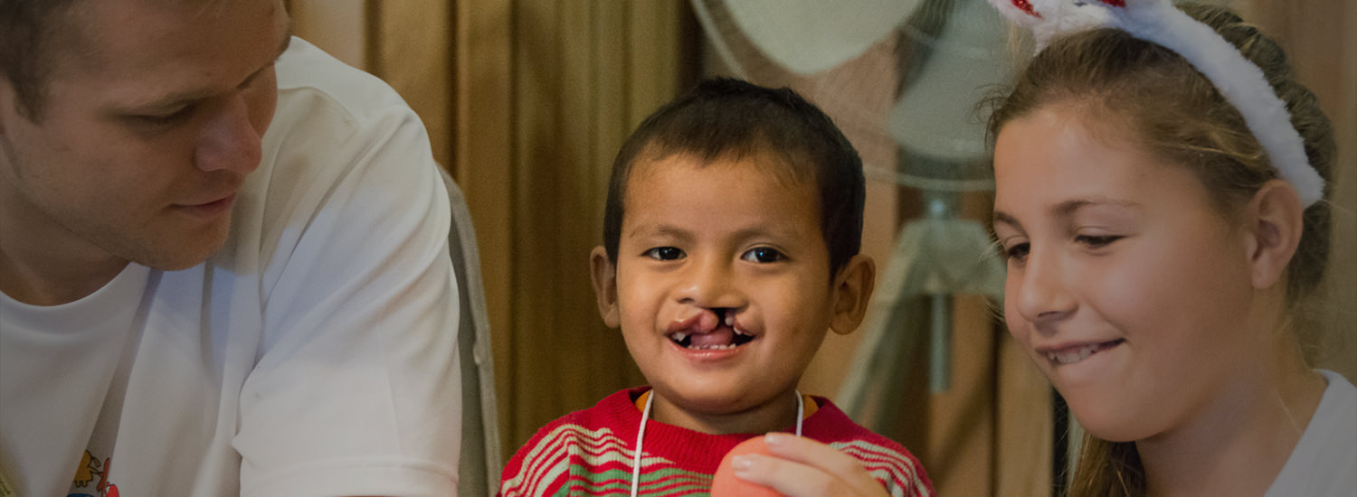 One of every 700 newborn babies is born with a cleft.